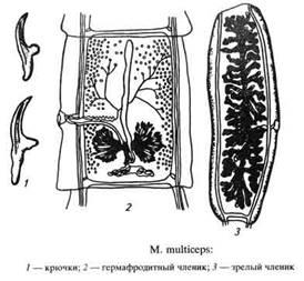 Анаэробная (инфекционная) энтеротоксемия