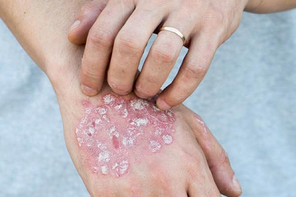 Лечение луковой шелухой различных болезней