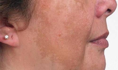 Петрушка для лица от морщин: 10 масок со сметаной в домашних услових